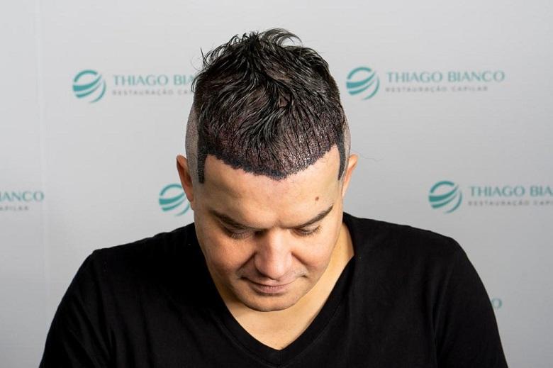 Belutti faz novo transplante capilar em São Paulo