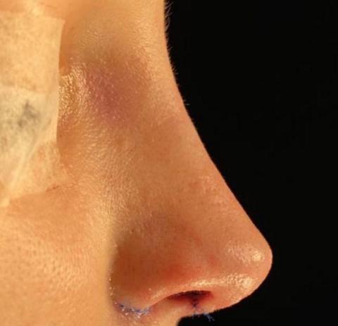Cirurgia Plastica: O que importante saber antes de fazer uma cirurgia