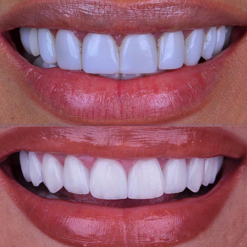 Descubra são os hábitos que podem estragar o esmalte dos dentes e como evitá-los