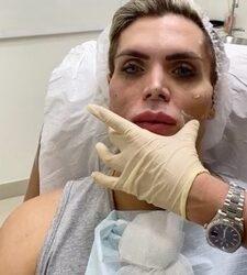 Mauricio Galdi, o Ken Humano, procura especialista em harmonização facial