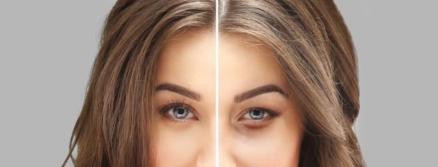 Estética: A primeira área que envelhece são as dos olhos