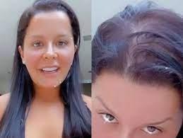Queda de cabelo excessiva da Atriz Paloma Duarte tem tratamento